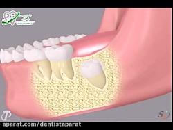 چرا کشیدن دندان عقل؟