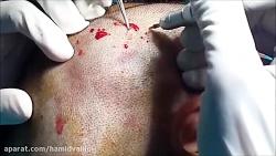 کاشت موی طبیعی به روش FIT تقدیمی از دکتر حمید وحیدی