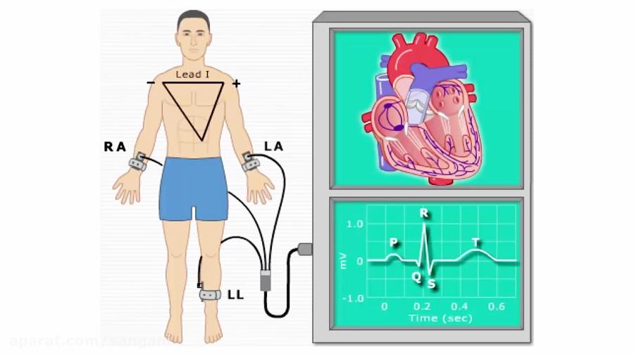 تدریس-نوار-قلب-یا-الکترو-قلب-نگاری