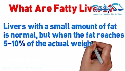 مواد غذایی موثر در حفظ سلامت کبد و پیشگیری از کبد چرب