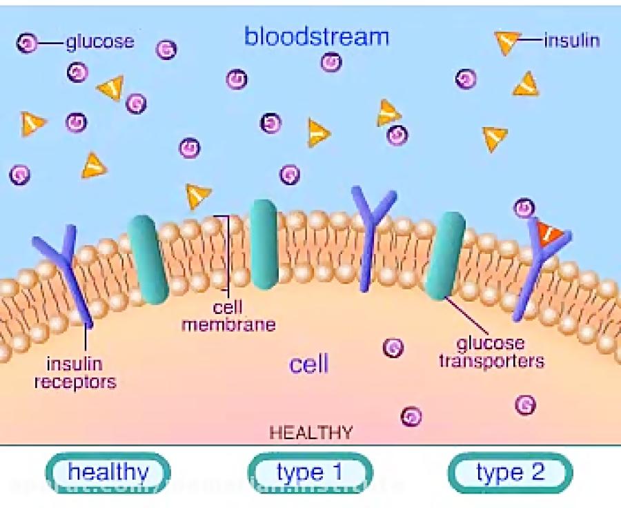 مقایسه-دیابت-نوع-1-و-2