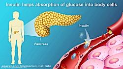 درک کامل دیابت نوع 2