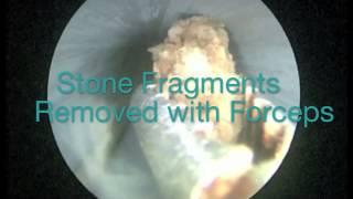 عملیات جراحی سنگ کلیه
