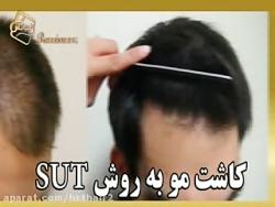 ترمیم مو - کاشت مو - کاشت ابرو - کاشت ریش و سبیل