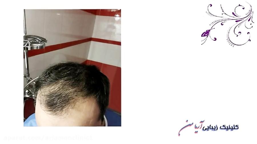 تصویر از فیلم مراحل کاشت مو به روش ترکیبی FIT و FUT   کلینیک زیبایی آریامن