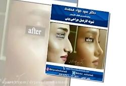 کلیپ نمونه کارهای دکتر سید جواد محمدی