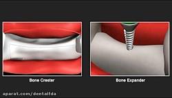 Bone Crester Expander