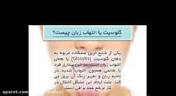 شایع ترین بیماری زبان یعنی التهاب زبان یا گلوسیت