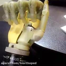 اسکلت دست مصنوعی