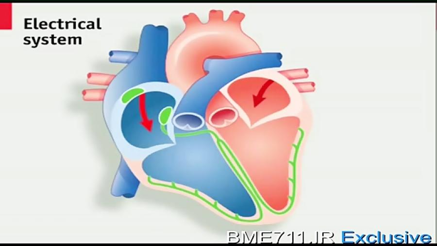دستگاه-ضربان-ساز-قلب