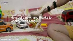 ساخت دست های مصنوعی رای...