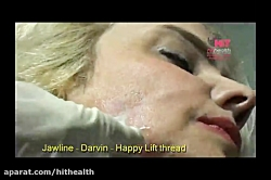 فرم دهی Jaw line  با نخ جوانساز داروین