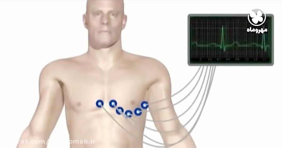 الکتروکاردیوگرافی-تدریس