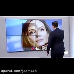 فاجعه جراحی دختر ایرانی سوژه رسانه های خارجی