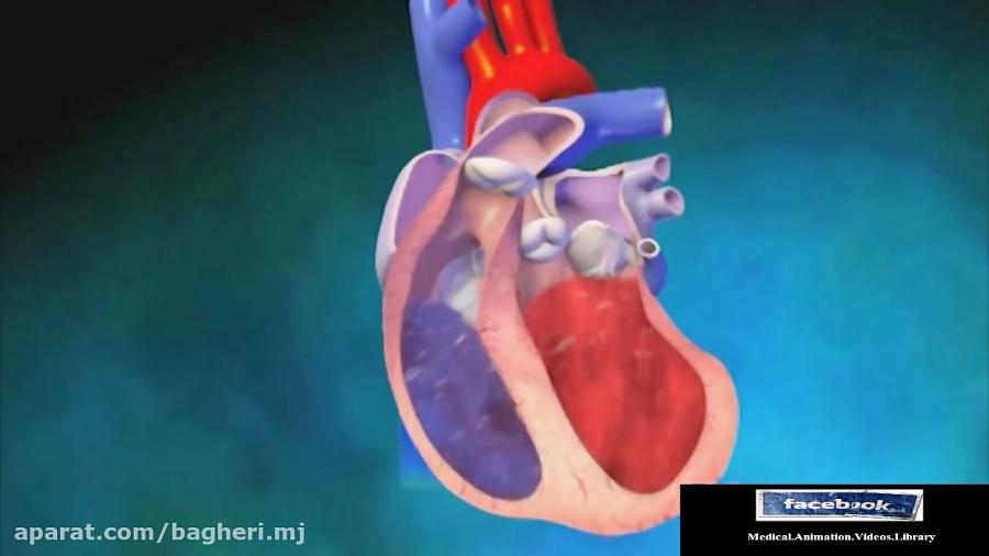 دریچه-های-قلب