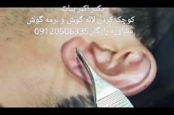 جراحی کوچک کردن سایز گوش - جراحی زیبایی گوش