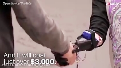 دست مصنوعی روباتیک