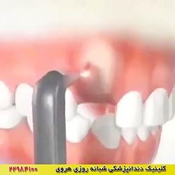 دندان نهفته - درمان - ارتودنسی