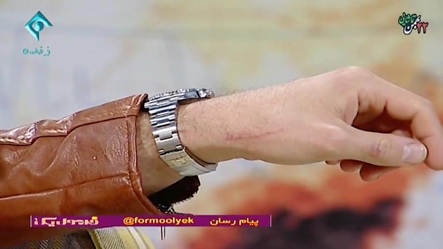 زخمی شدن علی ضیا در حاشیه برنامه زنده تلویزیونی!