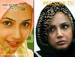 تصاویر هنرمندان قبل و بعد از عمل زیبایی بینی و صورت
