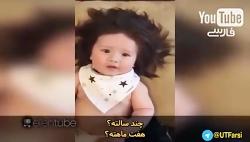 بچه ای که با مو به دنیا ...