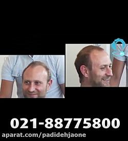 روش ترمیم مو بدون جراحی