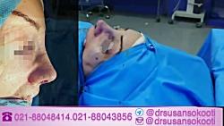 دکتر سوسن سکوتی ، جراح بینی