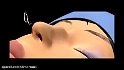جراحی بینی - دکتر عباس ن...