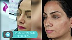 نمونه جراحی بینی دکتر سوسن سکوتی