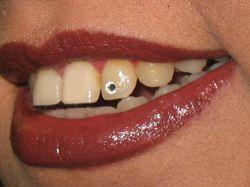 کاشت نگین دندان در کلینیک دندانپزشکی تبسم مهر - www.tabassomemehr.com