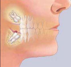دندانپزشکی در کلینیک دندانپزشکی تبسم مهر - دندان عقل - www.tabassomemehr.com