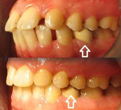 دندانپزشکی , ارتودنسی در کلینیک دندانپزشکی تبسم مهر  - www.tabassomemehr.com