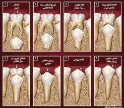 دندانپزشکی در کلینیک دندانپزشکی تبسم مهر- دندانپزشکی بزرگسالان-دندانپزشکی کودکان -دندانپزشکی زیبایی-تحلیل لثه-لامینت - کامپوزیت - ارتودنسی-پر کردن دندان و عصب کشی - www.tabassomemehr.com