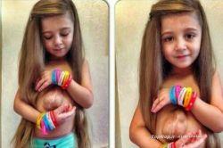 قلبی خارج از قفسه سینه  @top_nop خانواده این دختر شش ساله وقتی که بدنیا آمد با یک وضعیت نادر پزشکی روبه رو شدند. زمانی که این دختر بچه بدنیا آمد قلب وی خارج از قفسه سینه قرار داشت.این موقعیت بسیار حساس و پیش بینی نشده بود و زندگی این دختر بچه و خانواده اش را تحت تاثیر قرار داد.تخمین زده شد که در دنیا حدودا 5.5 میلیون نفر در دنیا با قلب خارج از قفسه سینه بدنیا آمده اند.