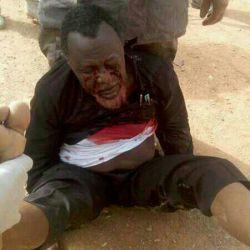 تصاویری دردناک از رهبر شیعیان نیجریه