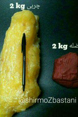 اینم علت چاقی