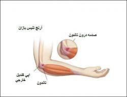 اسیب به تاندون آرن ج در تصویر قابل مشاهده است