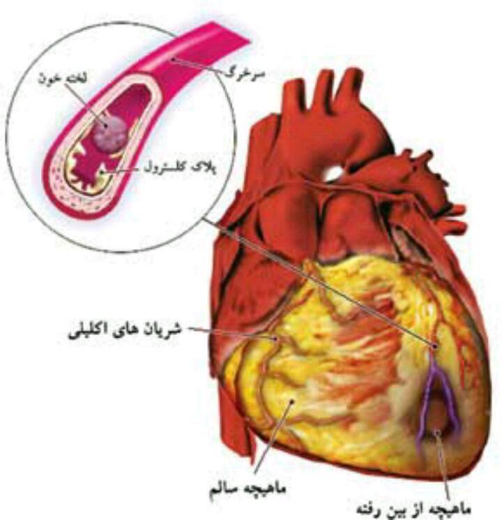 کلیپ آموزشی انجام آنژیوگرافی (دیدن عروق قلب)و آنژیوپلاستی(بازکردن عروق قلب با بالون و استنت)  در ️تلگرام ، بانک اطلاعات دارویی : @daroyab24