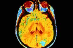 روشی جدید برای برگردوندن بیمارانی که در #کما هستن سروصدا کرده. با امواج فراصوت بخشی از مغز رو تحریک میکنن! http://www.scientificamerican.com/article/experimental-device-suggests-new-path-to-rousing-coma-patients/?WT.mc_id=SA_FB_MB_NEWS