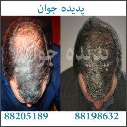 آیا بانک مویی کمی دارید؟ آیا به علت بانک موی کم پیوند مو برای شما مناسب نیست؟ آیا ریزش آندروژنیک موی سر شما ادامه دارد؟ ترمیم مو پدیده جوان ترمیم موهای طبیعی و تار به تار روی پوست سره شما ترمیم مو در یک جلسه میدان ونک خ ونک پاساژ ونک واحد106 88205189 88198632 88198627 09122499927