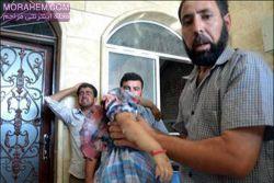 مدت ها از دیدن عکس پدر سوری که جسد بی سر دخترش رو بغل گرفته بود میگذره ولی ذره ای از حسم نسبت به این عکس عوض نشده و هنوز هم با دیدن اون دلم به درد میاد.