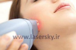 تاثیرگذاری لیزر موهای زائد به چه صورت است و آیا این لیزر باعث از بین رفتن موها میشود؟ برای درمان موهای زائد ۳ روش وجود دارد: دارو، الکترولیز و لیزر. لیزر موهای زائد را کم و نازک میکند اما باعث از بین رفتن آنها نمیشود.
