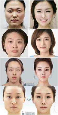 در برخی بیمارستان های کره جنوبی، پس از عمل جراحی پلاستیک گواهی ارائه میشود که ثابت میکند این فرد همان فرد قبل از عمل است!.
