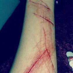 دست خودم نیست بعضی وقتا تنهاییم رو با تیغ قسمت میکنم...