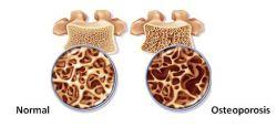 چه زمانی مصرف مکمل کلسیم ضروری است؟ زمانی که مصرف روزانه کلسیم کافی نیست همچنین بهنگام بیماریهایی مانند پوکی استخوان ،یائسگی و پیری .میزان مورد نیاز روزانه کلسیم در طی بارداری و شیردهی افزوده میشود.کلسیم میتواند در جریان مصرف بعضی داروها هم دچار کمبود جدی شود.