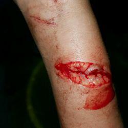 اینم دسته من ک شیشه خورده