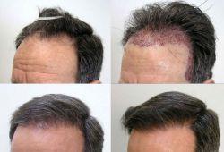 کاشت مو بدون نیاز به تراشیدن مو