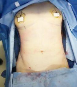 این هم نتیجه لیپوساکشن کامل شکم که 2 ساعت و ربع کاربرد