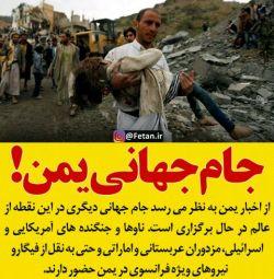 برای مردم مظلوم یمن دعا کنید .