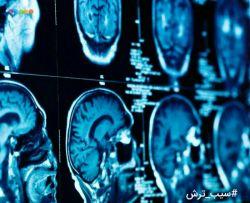 دختران زودتر از پسران عاقل میشوند!  کارشناسان دانشگاه نیوکاسل طی بررسیها با اسکن کردن مغز ۱۲۱ داوطلب بین ۴تا۴۰ ساله به این نتیجه رسیدند که دختران به راستی زودتر از پسرها بزرگ میشوند!